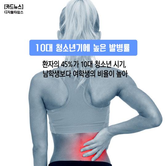 [카드뉴스] 내 척추는 `삐딱선`? 건강의 중심 세워보세요